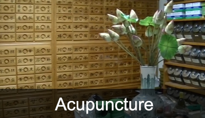 Acupuncture Encinitas